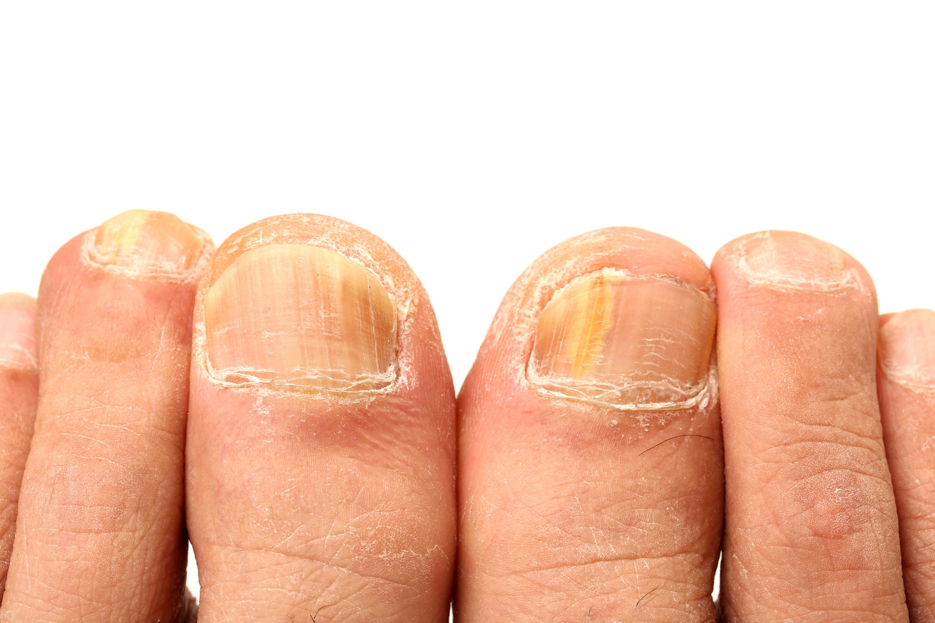 Treat Several Disorders Using This One Ingredient At Home