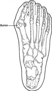 Bunion Techincal Drawing