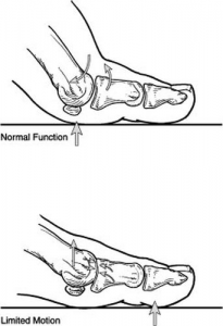 Hallux Limitus Technical Drawing