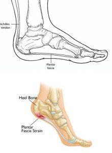 Heel Pain (Plantar Fascia)