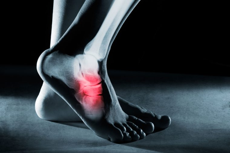 Avoid These Common Complications Resulting From Neglected Foot Injuries