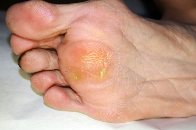 All You Need To Know About Painful Corns Amp Callous